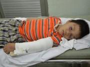 Cảnh giác - Mẹ vắng nhà, bé trai 6 tuổi bị dượng đánh gãy tay, chân