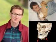 Phi thường - kỳ quặc - Vỡ hộp sọ sau tai nạn vẫn học tiếp đại học