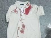 Trọng án - Hung thủ mặc nguyên chiếc áo dính máu ra đường
