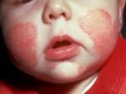 Sức khỏe đời sống - Vừa vào đông, bệnh viêm da tấn công đến khốn khổ