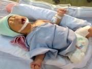 Sức khỏe đời sống - Bộ trưởng Bộ Y tế khen bác sỹ cứu bé sơ sinh văng khỏi bụng mẹ