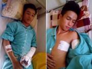 An ninh Xã hội - Hai học sinh bị côn đồ truy sát bằng dao