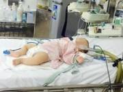 Sức khỏe đời sống - Uống thuốc cam, bé 6 tháng tuổi bị hôn mê, co giật