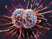 Sức khỏe đời sống - Báo động ung thư vì béo phì