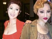 """Làm đẹp - Khuôn mặt biến dạng giống """"xà tinh"""" của sao Hồng Kông"""