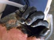 Sức khỏe đời sống - Bác sĩ ám ảnh cảnh bệnh nhân nằm la liệt, tím đen vì dịch hạch