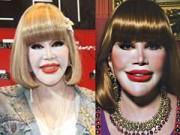 Làm đẹp - Quý bà Thái Lan gây sốc với gương mặt biến dạng