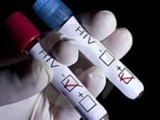 Sức khỏe đời sống - Cà Mau: Phát hiện hơn 200 trường hợp nhiễm HIV mới
