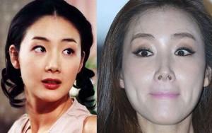 Làm đẹp - Sao Hàn xuống sắc thảm hại vì lạm dụng phẫu thuật thẩm mỹ