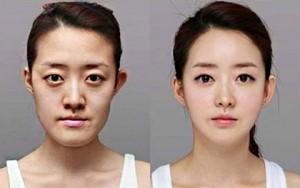 """Làm đẹp - Phái đẹp Trung Quốc: Khách """"sộp"""" của thẩm mỹ viện xứ Hàn"""
