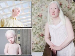 Chuyện lạ - Bộ ảnh tuyệt đẹp về những người bạch tạng