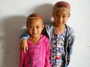 Bạn trẻ - Cuộc sống - Cảm động hai em bé hiến da đầu cứu cha bỏng nặng