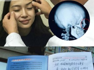 Lộ phim X-quang có vật thể lạ trong mũi Angelababy