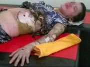 An ninh Xã hội - Một phụ nữ bị chồng tưới xăng đốt như ngọn đuốc