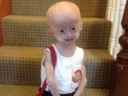 Bệnh trẻ em - Bé gái 5 tuổi hóa bà lão vì căn bệnh hiếm gặp