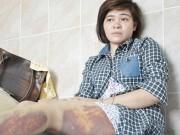 An ninh Xã hội - CA Trảng Bàng xin lỗi nữ công nhân bị đánh nhập viện
