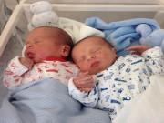 Thế giới - Anh: Anh em song sinh nắm chặt tay nhau khi vừa ra đời