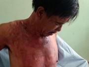 An ninh Xã hội - Bị đánh, vợ tạt cháo nóng vào chồng
