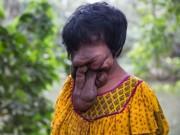 Bạn trẻ - Cuộc sống - Cô gái 21 tuổi không có mặt vì mắc bệnh hiếm gặp