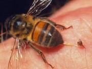 Sức khỏe đời sống - Bị ong đốt 41 mũi, bé sáu tuổi suy gan, thận