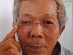 An ninh Xã hội - Cán bộ phường xin lỗi sau vụ xô xát khiến dân nhập viện