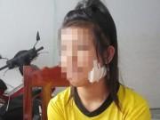 Giáo dục - du học - Ngăn bạn đánh nhau, nữ sinh lớp 9 bị chặn đường rạch mặt
