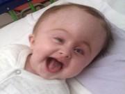 Sức khỏe đời sống - Nghị lực sống phi thường của bé mắc chứng rối loạn não hiếm gặp