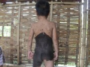 """Tin tức trong ngày - Xót xa bé gái 5 tuổi mọc lông như """"người rừng"""" ở Nghệ An"""