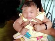 Sức khỏe đời sống - Mẹ của bé gái nghi mắc chứng đầu nhỏ ở Đắk Lắk từng nhiễm Zika