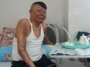 Chiến sĩ duy nhất còn sống sau vụ rơi máy bay ở Hòa Lạc sắp ra viện