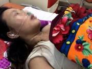 An ninh Xã hội - Chồng đánh vợ tổn thương sọ não, nhập viện cấp cứu