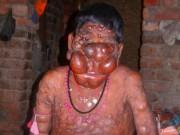 """Phi thường - kỳ quặc - Cậu bé có khuôn mặt """"ác quỷ"""" ở Ấn Độ"""