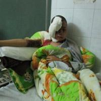 Cô dâu bị tạt axít trước ngày cưới