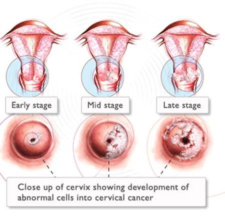 Ung thư cổ tử cung - 1