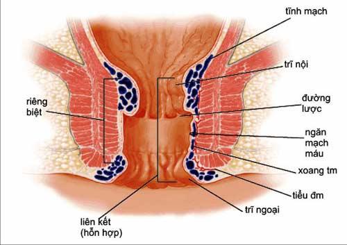 Nguyên nhân và giải pháp cho chứng xuất Huyết Dưới Da - 1