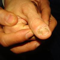 """""""Dị nhân"""" chẩn bệnh qua móng tay"""