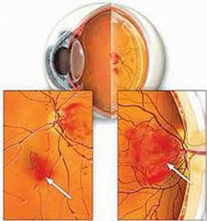 1299903101 mat o nguoi dtd Bệnh đái tháo đường và những nguy cơ về mắt