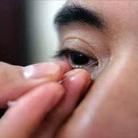Các biến chứng mắt ở bệnh nhân đái tháo đường