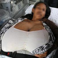 Quảng Ngãi: Thiếu nữ có bộ ngực nặng 10,4kg