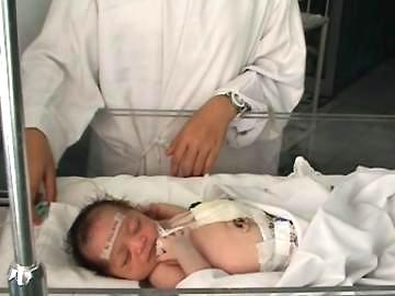 Em bé có 2 bộ phận sinh dục - 1