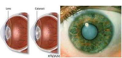 Nguyên nhân và giải pháp của bệnh suy giảm thị lực, Sức khỏe đời sống,