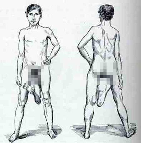 Những người có 2 bộ phận sinh dục - 3