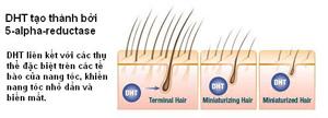 Cách mới giúp chữa rụng tóc, hói đầu hiệu quả - 2
