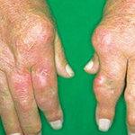 Sức khỏe đời sống - Mất tay, tàn phế vì chữa khớp không đúng