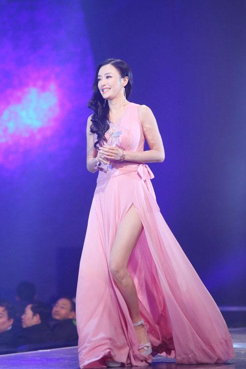 Trương  Bá Chi đẹp từng centimet - 16
