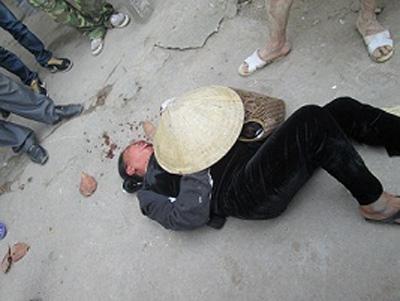 Con trai bí thư xã đánh dã man cụ già - 2