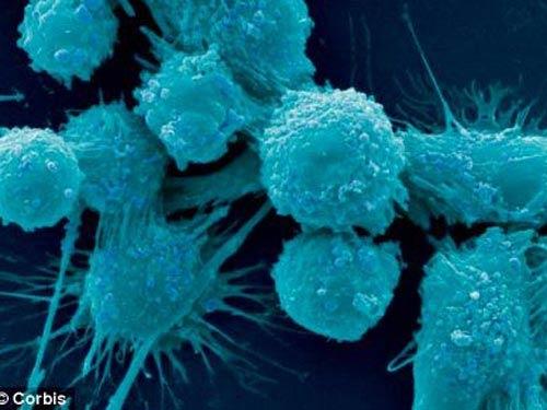 """Đàn ông hói sớm dễ ung thư """"vùng kín"""" - 2"""