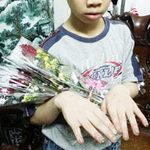 Tin tức trong ngày - Chích thuốc lá đang cháy vào tay trẻ