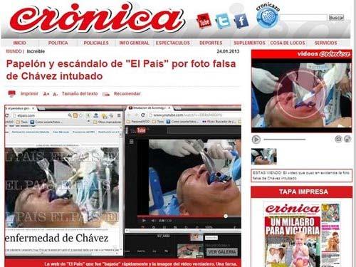 Xôn xao ảnh ông Chavez thở máy tại bệnh viện - 2