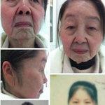 Sức khỏe đời sống - Phụ nữ 28 tuổi thành bà lão 80